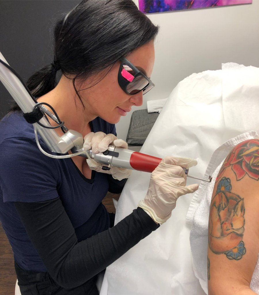 How to start a tattoo removal business